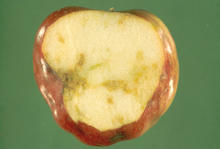 An apple with brown rotting pulp